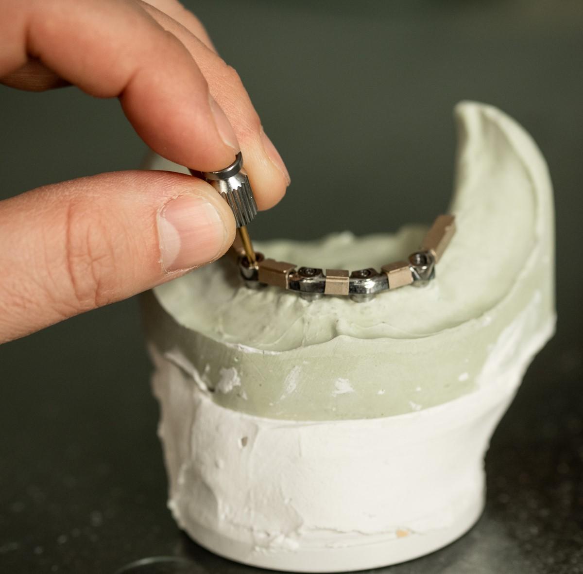 prothese-sur-implants